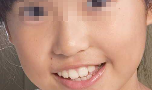 三軒屋万智の笑顔の画像が見たい!マンチッチの子供時代はどんな顔?